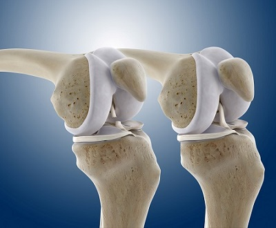 knee__bones__connective___rupture_ACL__sch (1)
