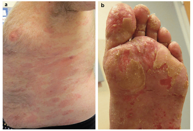 Mycosis Fungoides and Sezary Syndrome © Springer International Publishing Switzerland 2015